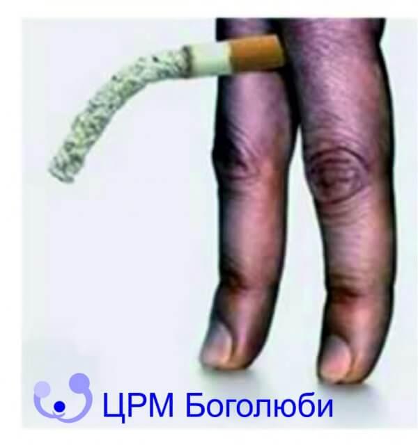 народная медицина избавление от паразитов